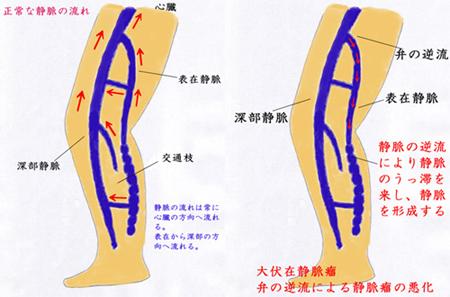 下肢静脈瘤01